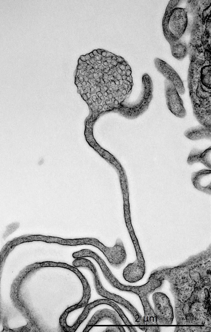 116 - Bouton floral de vésicules intracellulaires.