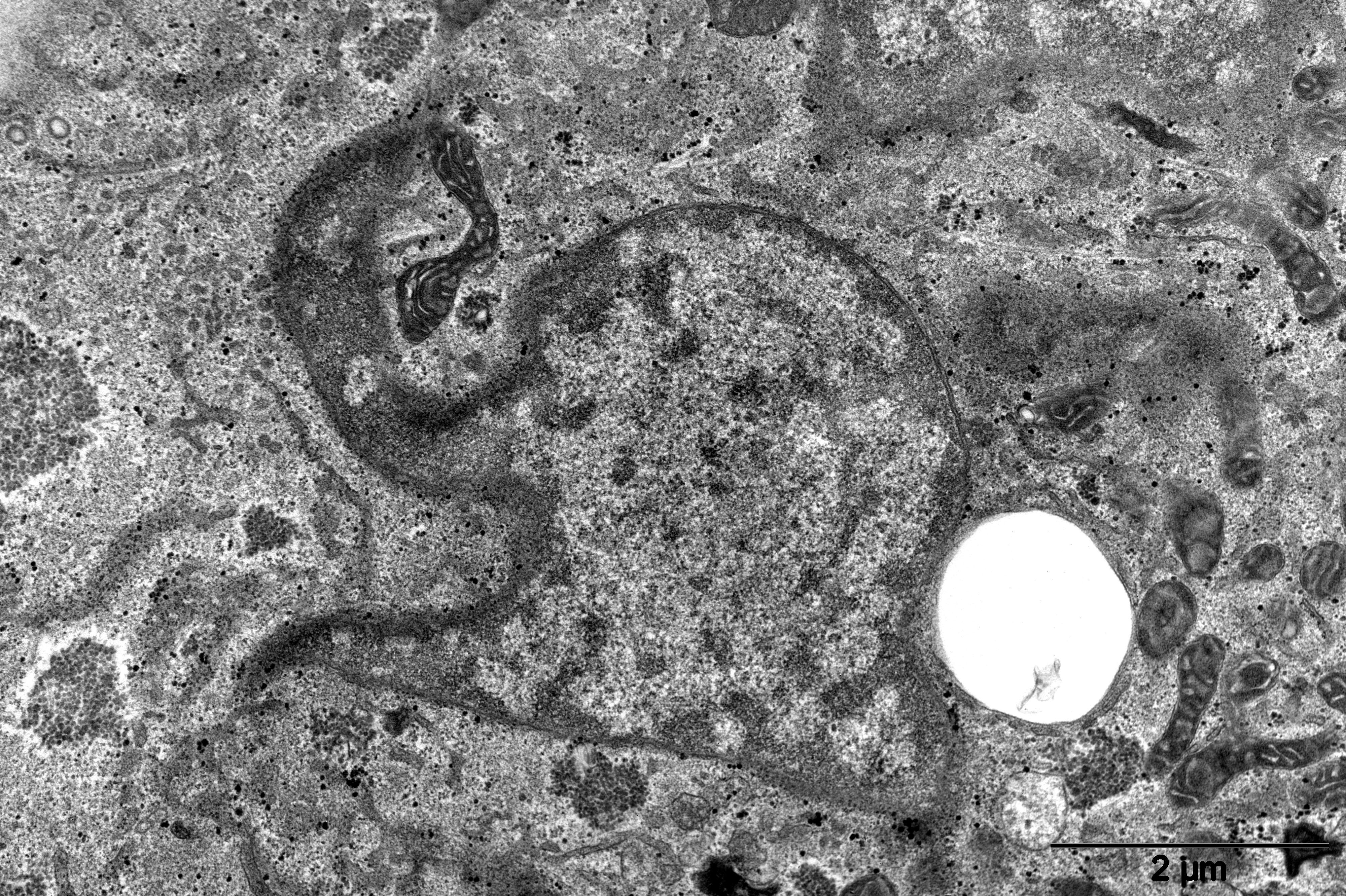 119 - Elephantus nucleus