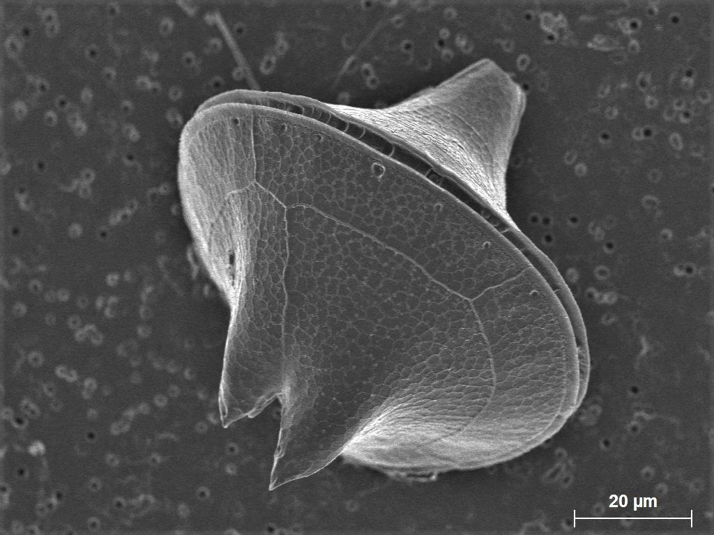 31 - Protoperidinium sp.